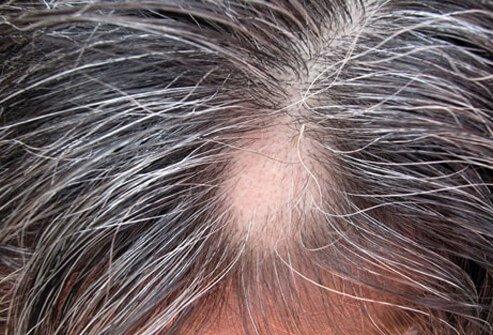 womens-thinning-hair-loss-s9-photo-of-alopecia-areata